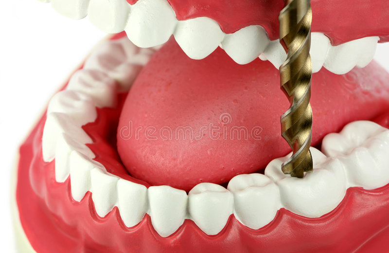 钻牙 免版税库存照片