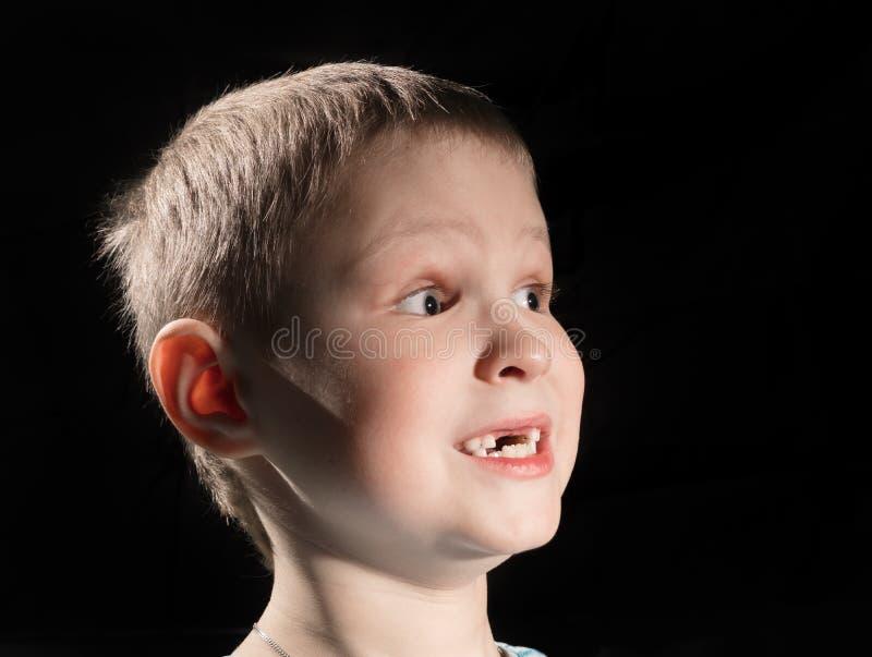 错过一些前牙的逗人喜爱的男孩 库存图片