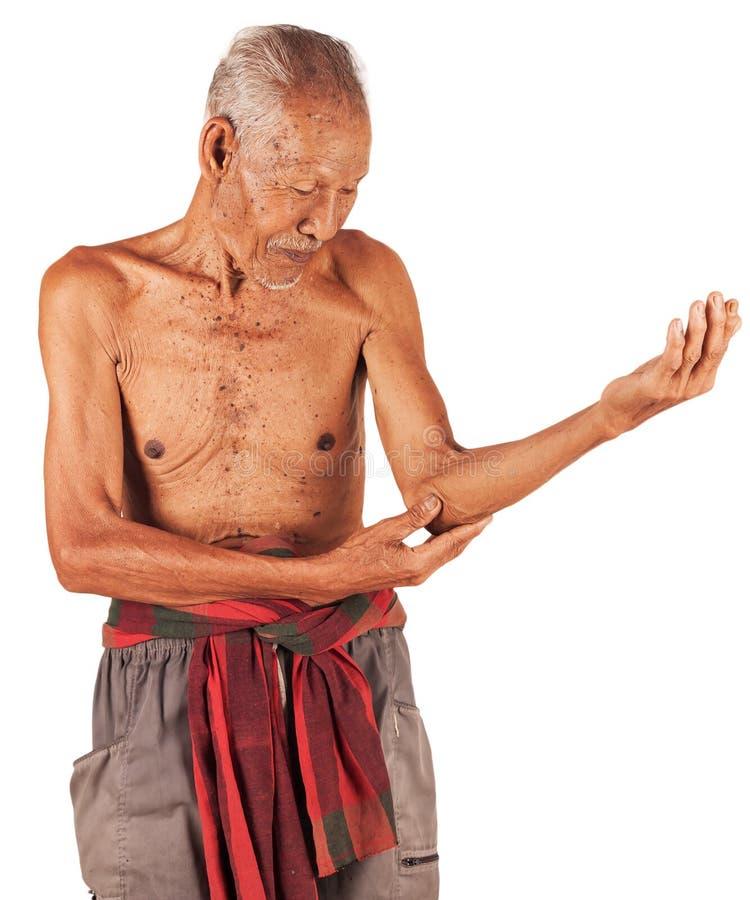年长人痛苦的手肘 库存照片