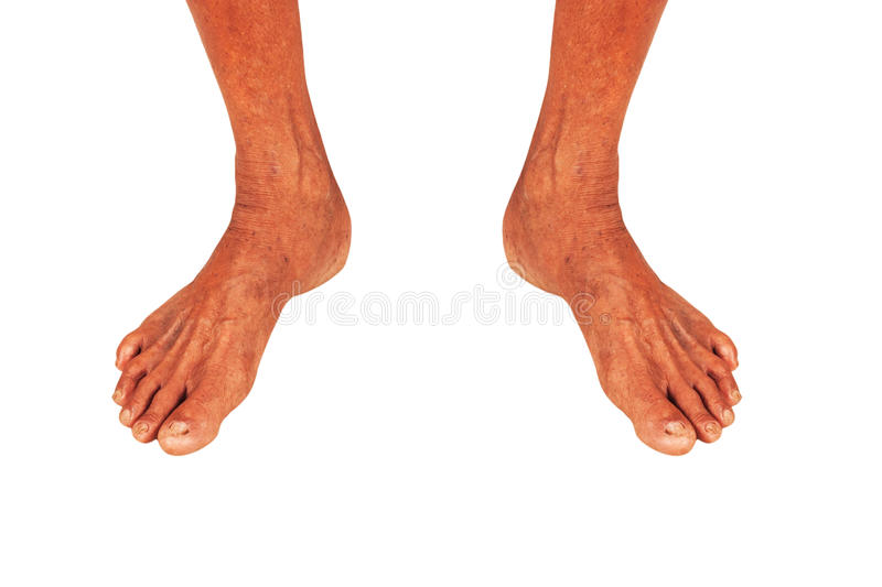 年长人的脚 库存图片