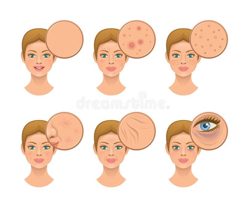 问题皮肤 向量例证