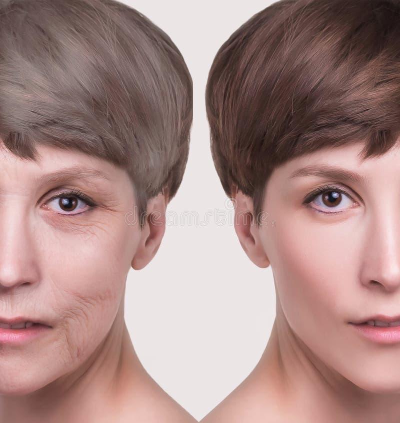 防皱,秀丽治疗、老化和青年时期,举,skincare,整容概念 库存照片