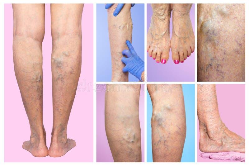降低肢体血管考试,因为多血脉性的不足的嫌疑犯 库存图片