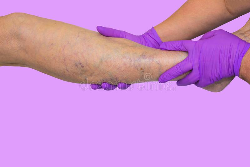 降低肢体血管考试,因为多血脉性的不足的嫌疑犯 免版税库存图片