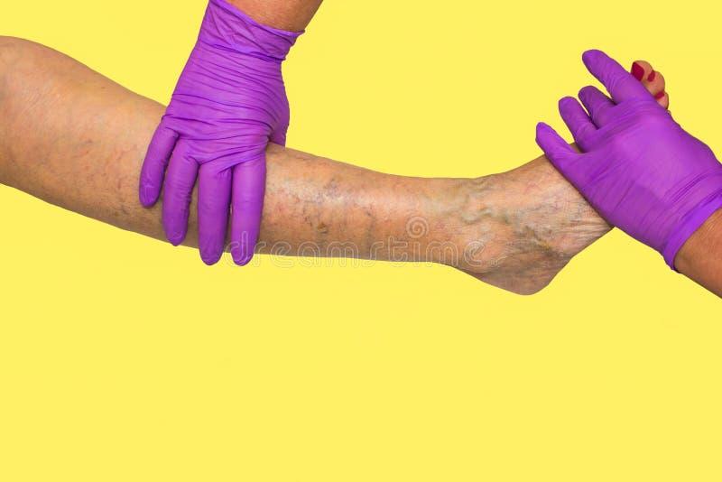 降低肢体血管考试,因为多血脉性的不足的嫌疑犯 图库摄影