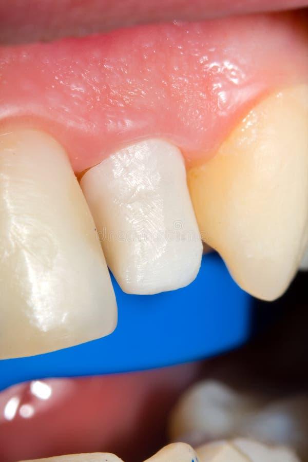 陶瓷牙齿锆石 免版税图库摄影