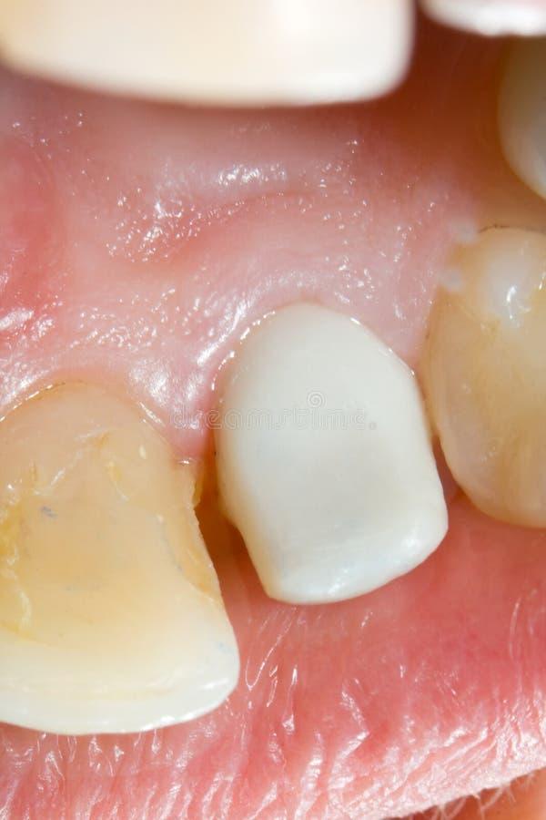 陶瓷牙齿锆石 图库摄影