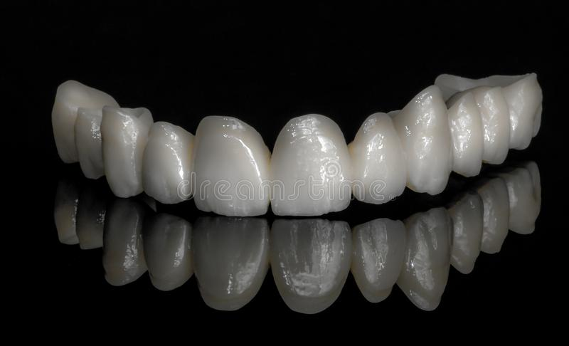 陶瓷锆 牙 牙科技师 免版税图库摄影