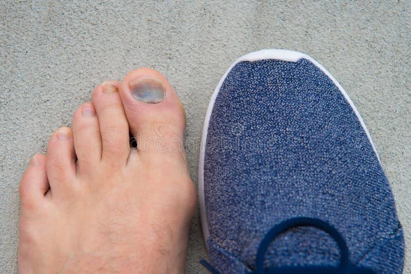难受的鞋子 钉子真菌 健康脚 手指疾病 ?? 脚趾受伤 挫伤治疗 ?? 免版税库存图片