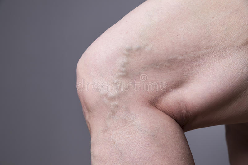 静脉曲张特写镜头 厚实的女性腿 库存照片