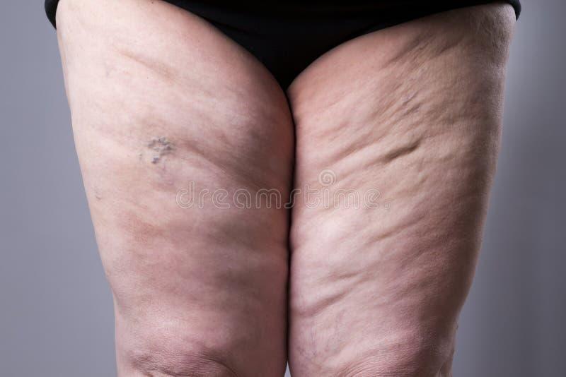 静脉曲张特写镜头 厚实的女性腿 免版税库存图片