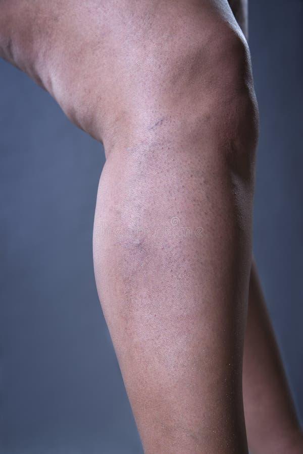 静脉曲张特写镜头,厚实的女性腿 库存照片