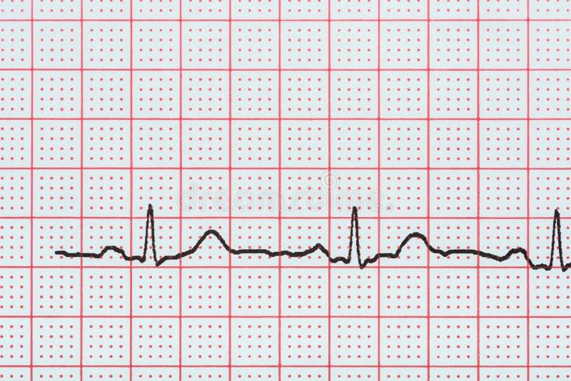 静脉窦在显示正常心脏的心电图记录纸的心脏节奏 免版税库存照片