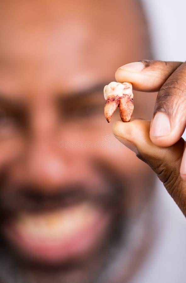 非洲裔美国男子拔牙 高年级男人兴高采烈地拔牙 背景模糊的选定焦点 免版税图库摄影