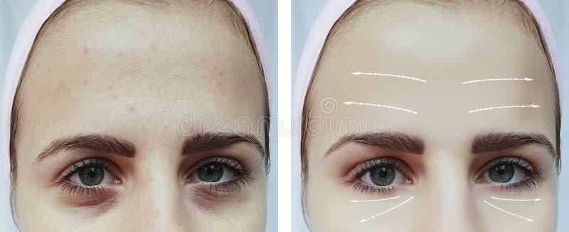 面孔女孩注视皱痕胀大在区别做法前后 免版税库存照片