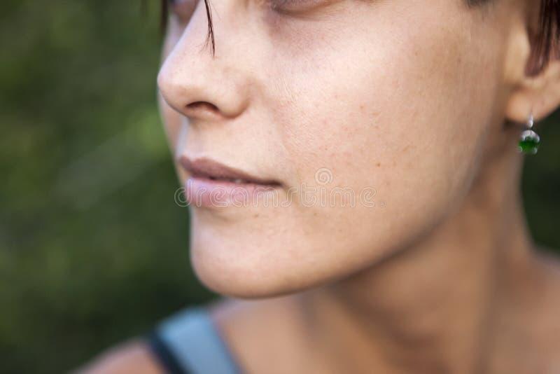 面孔的问题皮肤 库存照片