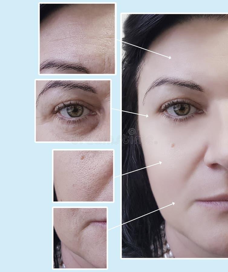 面对妇女皱痕眼睛在做法前后的疗法撤除,染色 图库摄影