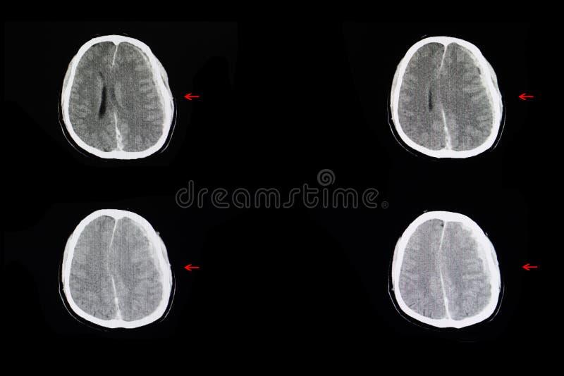 颅内的出血和脑子肿鼓 库存图片