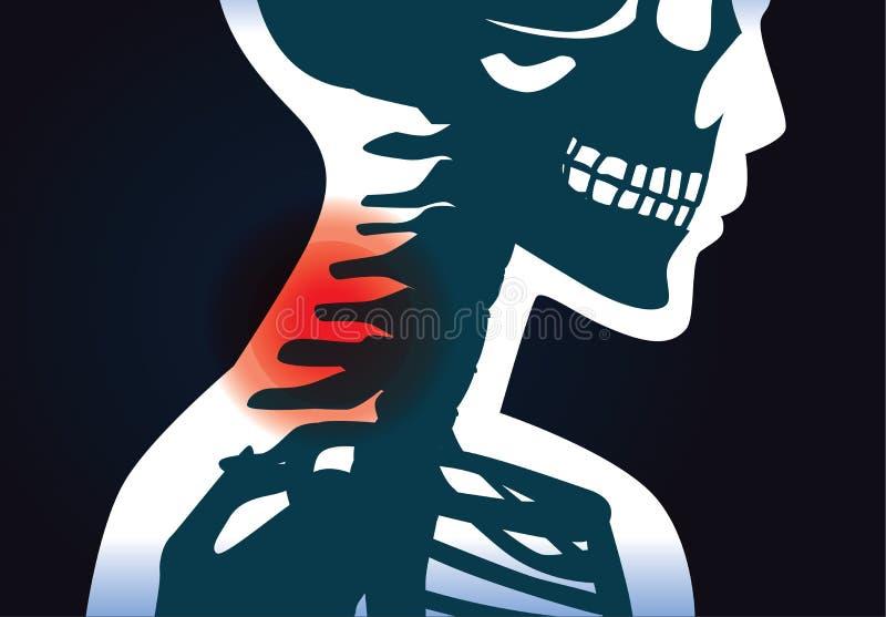 颈骨有痛苦症状 皇族释放例证