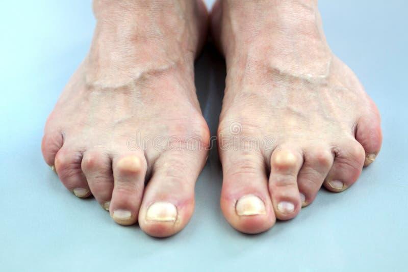 从风湿性关节炎扭屈的妇女的脚 免版税图库摄影