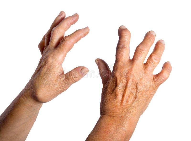 从风湿性关节炎扭屈的手 免版税库存图片