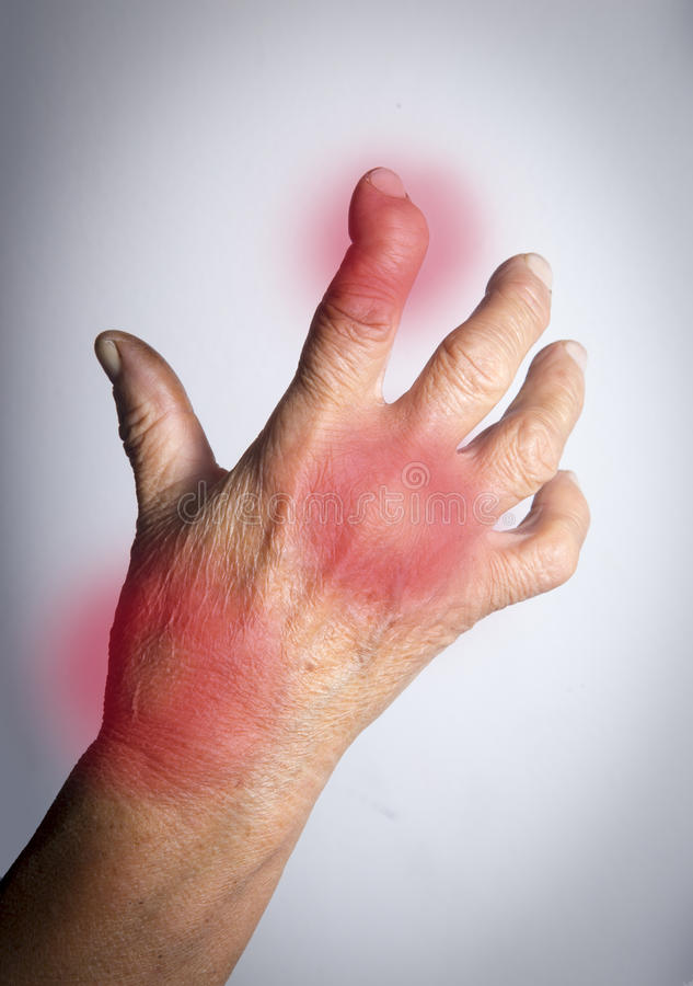 从风湿性关节炎扭屈的手 免版税库存照片
