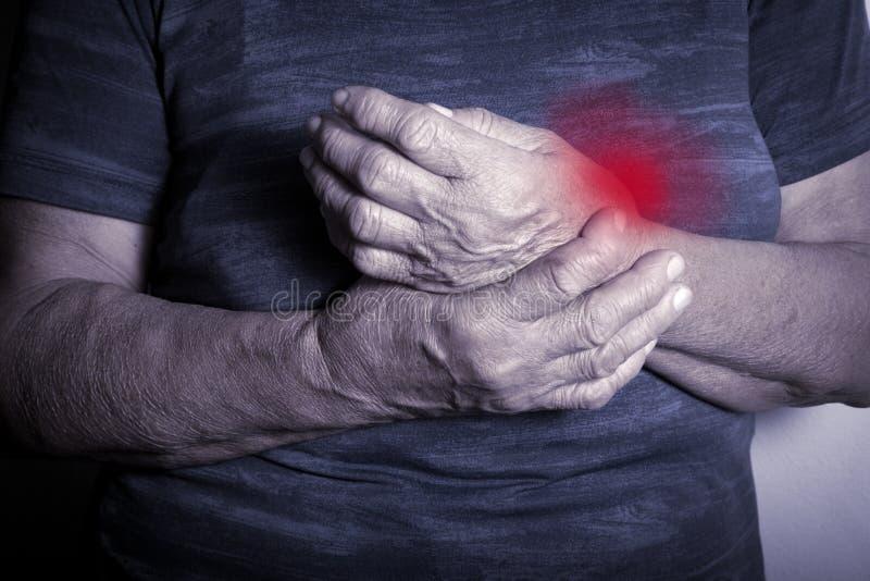 从风湿性关节炎扭屈的手 图库摄影