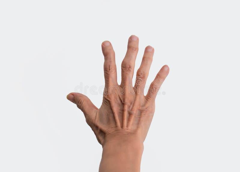 风湿性关节炎的影响的女性老化的手隔绝在白色 库存照片