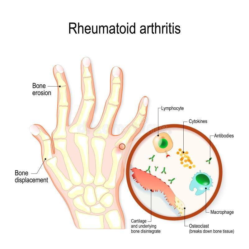 风湿性关节炎镭是关节炎的一种自动免疫疾病和激动的类型 皇族释放例证