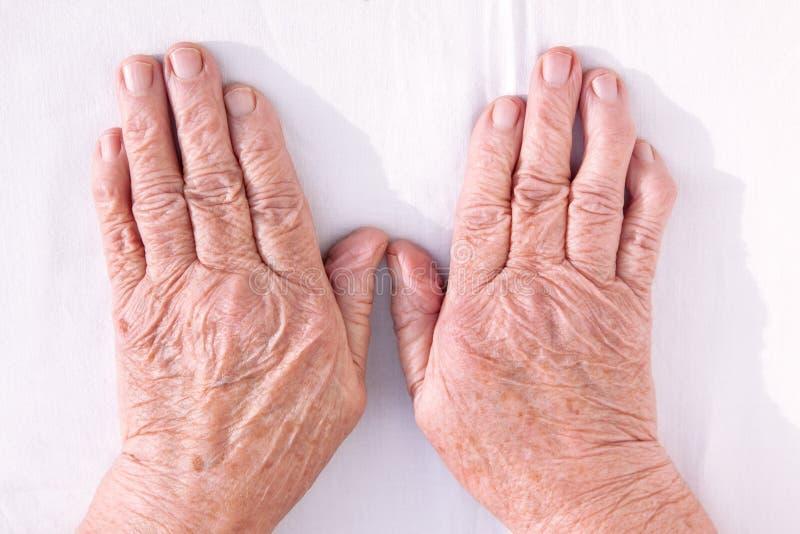 从风湿性关节炎geformed的老妇人的手 免版税库存图片