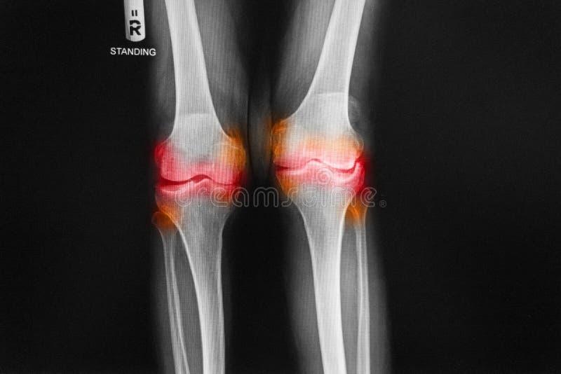 骨关节炎右膝先前影片的X-射线AP -膝盖的后部 免版税库存照片