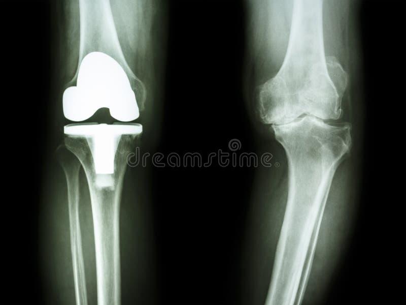骨关节炎膝盖患者和人工接缝 库存图片