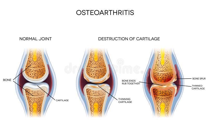 骨关节炎,不健康的联接 向量例证