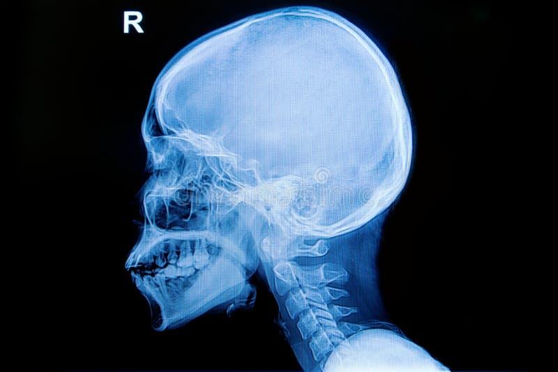 头骨和子宫颈脊椎的X-射线人 免版税库存照片