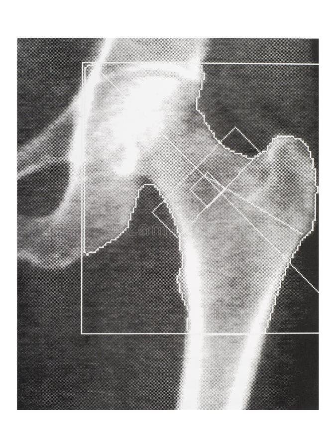 骨头密度医疗扫描-臀部 骨质疏松症诊断 库存图片