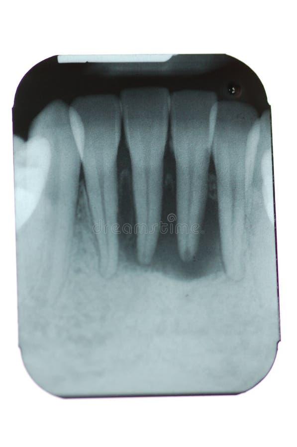 骨头损失牙周总额 库存照片