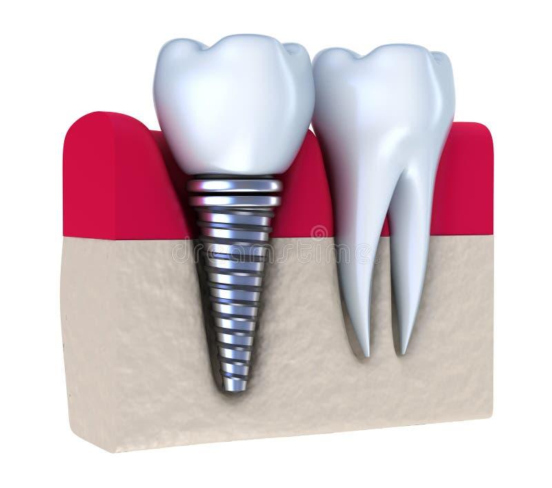 骨头牙插入物被种入的下颌 皇族释放例证
