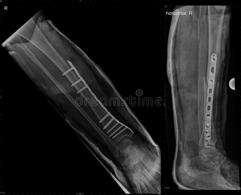 骨头胫骨破裂的骨缝术 免版税库存图片