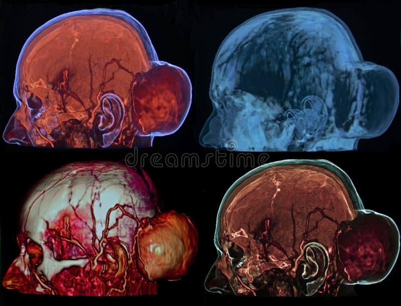 头骨的骨头肿瘤, CT 免版税库存照片