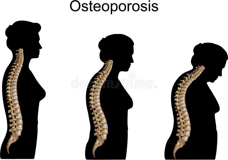 骨质疏松症 向量例证