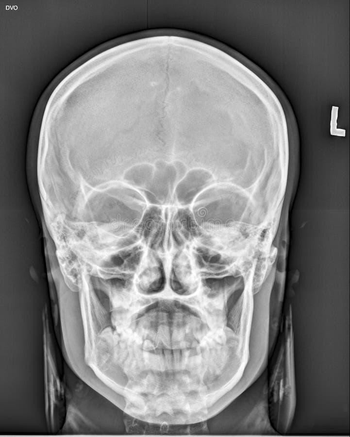 头骨领袖医疗X-射线 库存照片