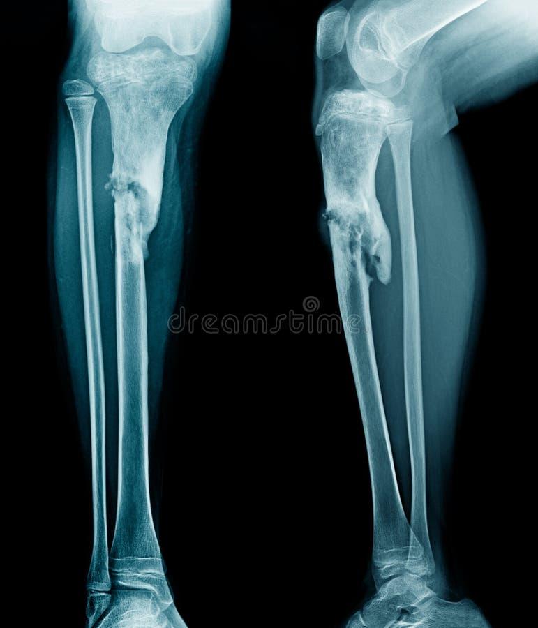 骨髓炎胫骨 库存图片