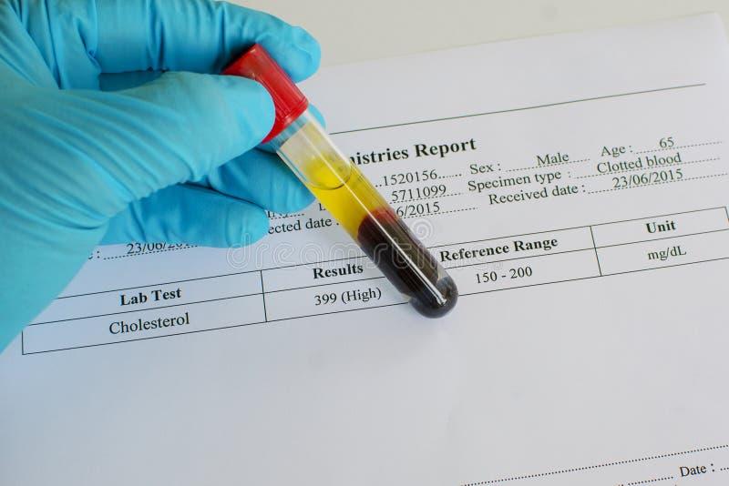 高胆固醇 免版税库存图片