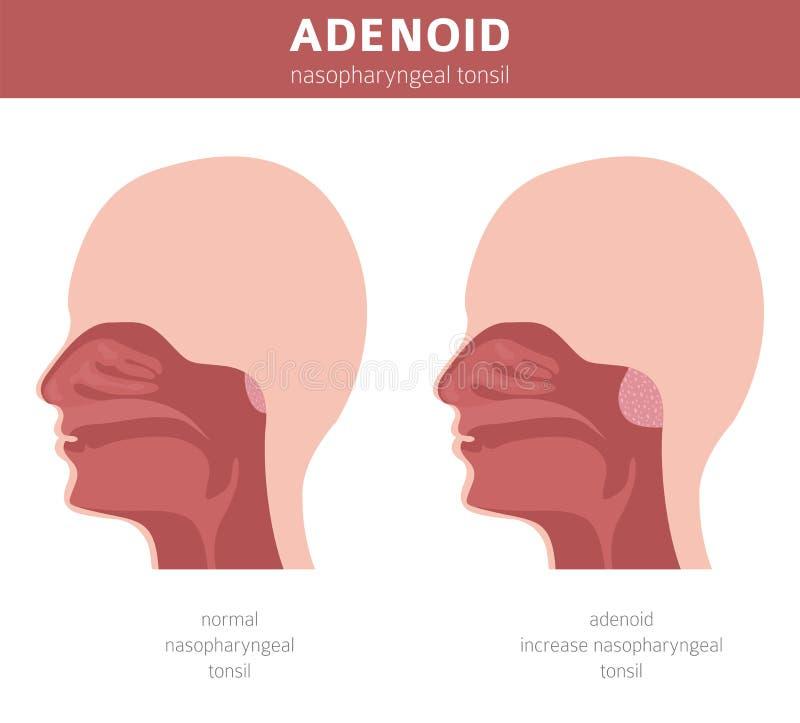 鼻和喉头,鼻咽疾病 增殖腺诊断和治疗医疗infographic设计 向量例证