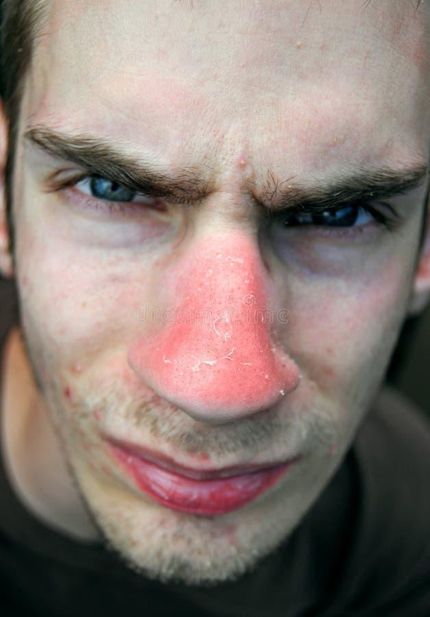 鼻子晒斑 库存图片