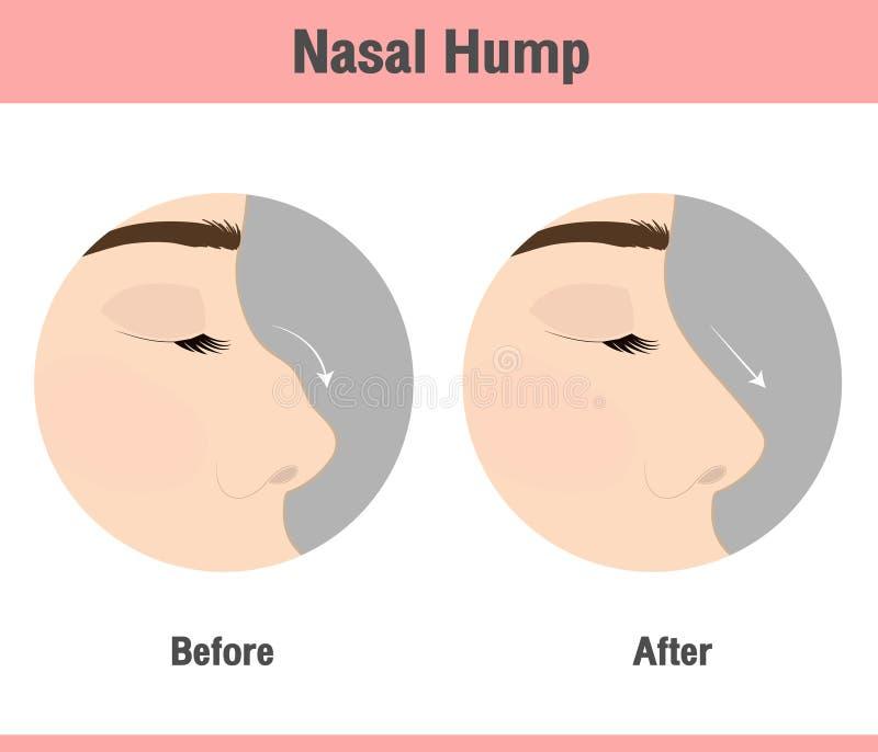鼻子重建或鼻小丘撤除 库存例证