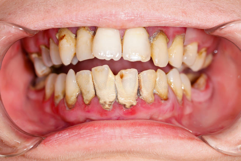 齿垢 免版税库存照片