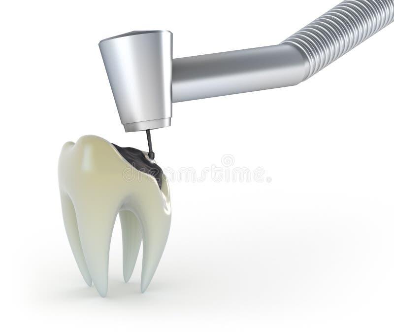 龋牙处理 向量例证