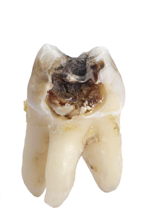 龋牙齿牙 免版税库存照片