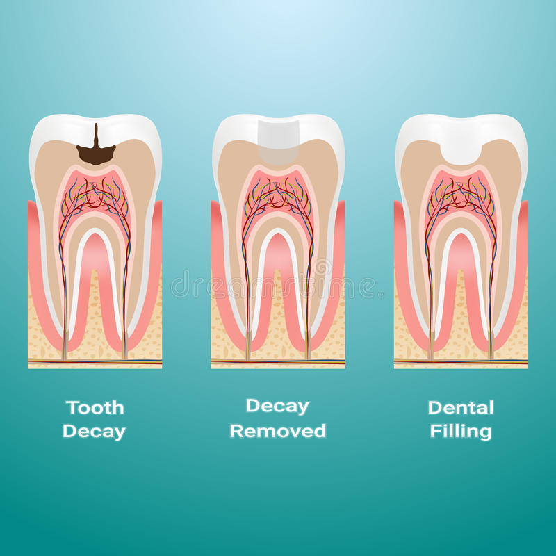 龋的治疗 牙齿装填 在背景详述隔绝的龋 也corel凹道例证向量 皇族释放例证